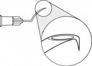 Irrigating Cystotomes